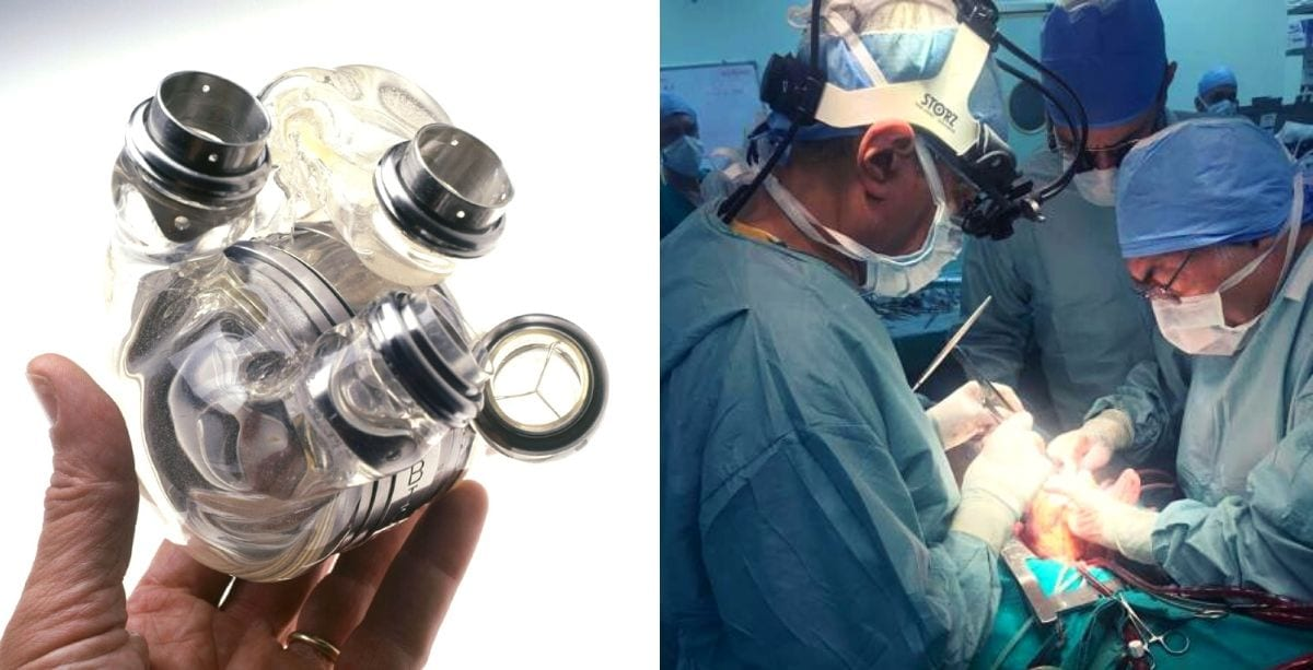 Lebanon Just Recorded Its First Successful Artificial Heart Transplant